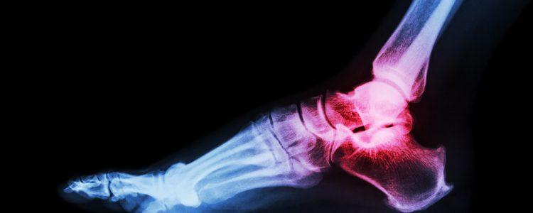 ankle-arthritis-750x300